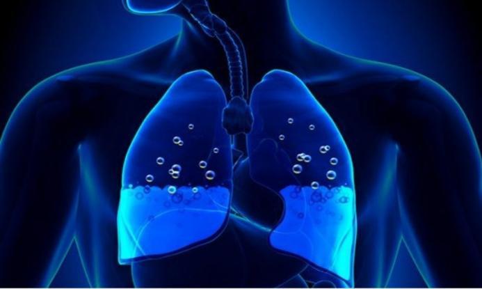 Πνευμονικό